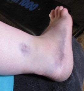 The sprained ankle 2 days after the 'incident'.