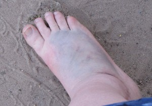 This is my foot about 1 week after being stomped.